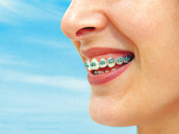 Orthodontics: Scope and Career Opportunities