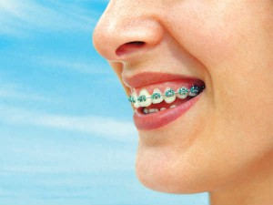 Orthodontics Scope And Career Opportunities Dentist Dealing With Braces Teeth